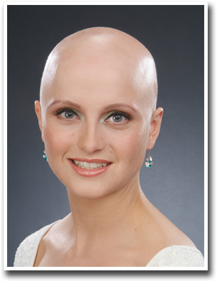 cancer-baldness
