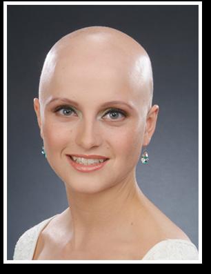 cancer-baldness